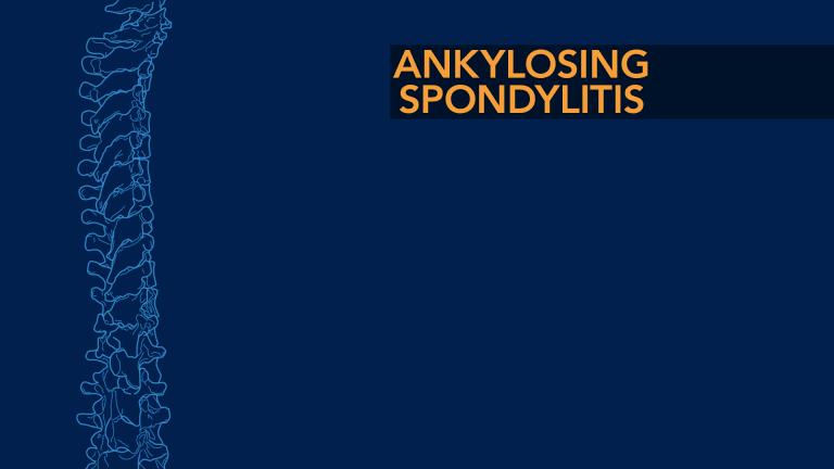 Ankylosing Spondylitis (AS)