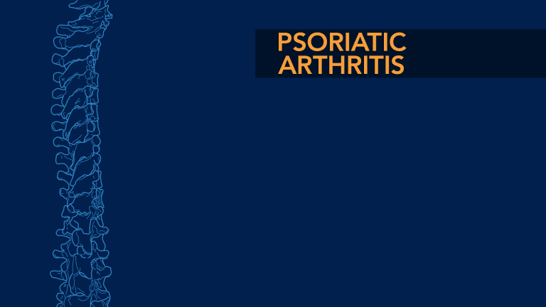 Psoriatic Arthritis -  Spondylitis of The Spine