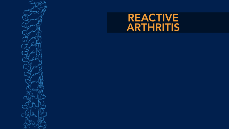 Reactive Arthritis and the Spine