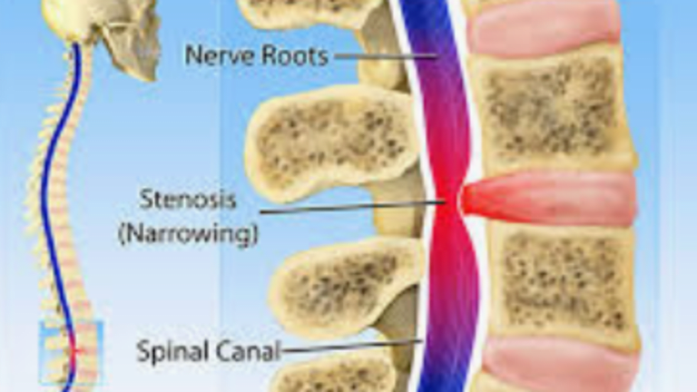 Lower Back Pain? Is It Hip Arthritis or Lumbar Spinal Stenosis?